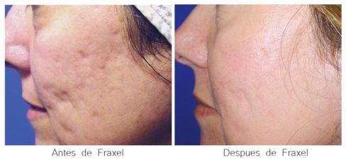 antes-despues-fraxel-cicatrices2