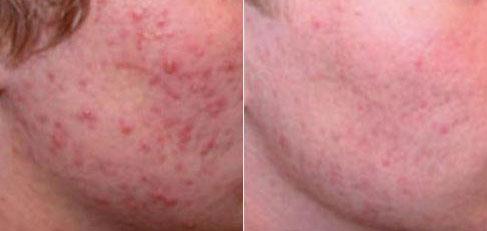 tratamiento-acne-con-laser-antes-y-despues